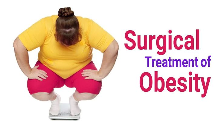 If the non-surgical methods of obesity management …