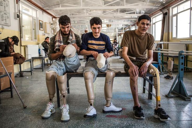 Afghan National Army soldiers with injuries and amputations adjust their prostheses between sessions at a therapy center.