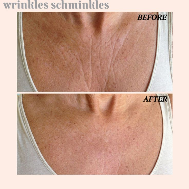 No more wrinkles on my chest! .