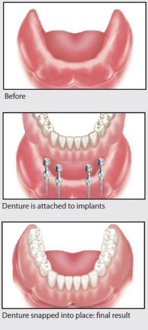 Antes: Un reborde mandibular inferior desdentado. Después: Se colocan 4 implantes para mantener una prótesis mandibular firmemente en su lugar.