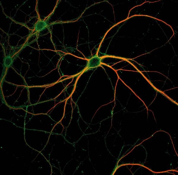 Amazing to think that this insignificant looking bundle of strands is what makes us who we are, and controls everything we do. Neuroscience is fascinating stuff.