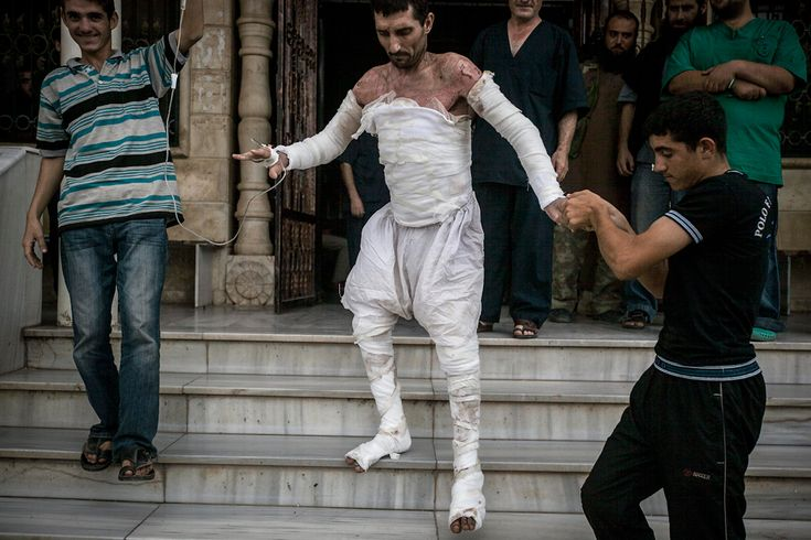 A Syrian man with more than half his body burnt from an air strike leaves a field hospital to go back home at a village turned into a battlefield with government forces in Idlib province, northern Syria, on Sept. 22. (Associated Press)