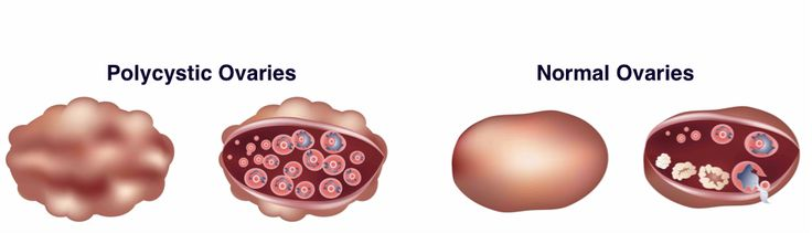 If #Polycystic #Ovarian #Disease is not #treated on #time, it can cause #major problems like #diabetes, #heart #disease etc.Early #treatment can cure this #problem and helps in #preventing #long term #diseases.
