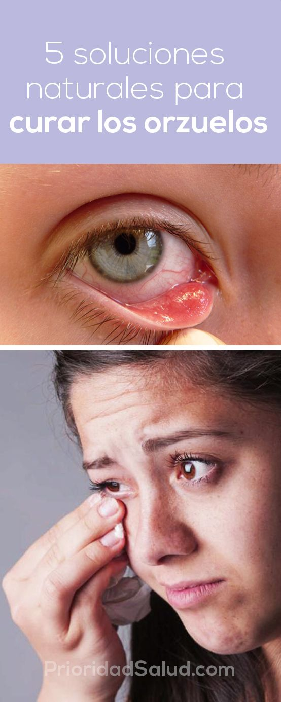 Remedios para orzuelos en los ojos. Remedios caseros efectivos eliminar los orzuelos en el ojo.