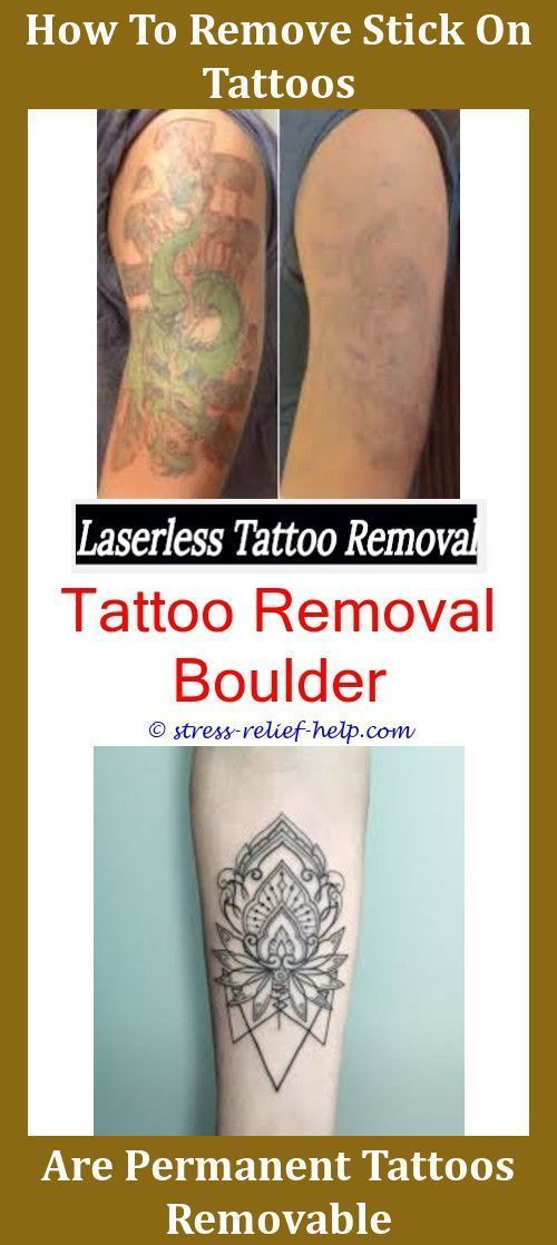 Tattoo Excision How To Be A Tattoo Removal Technician Uk Tattoo ...
