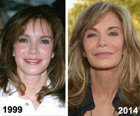 Jaclyn Smith Plastic Surgery Before Amp After Http