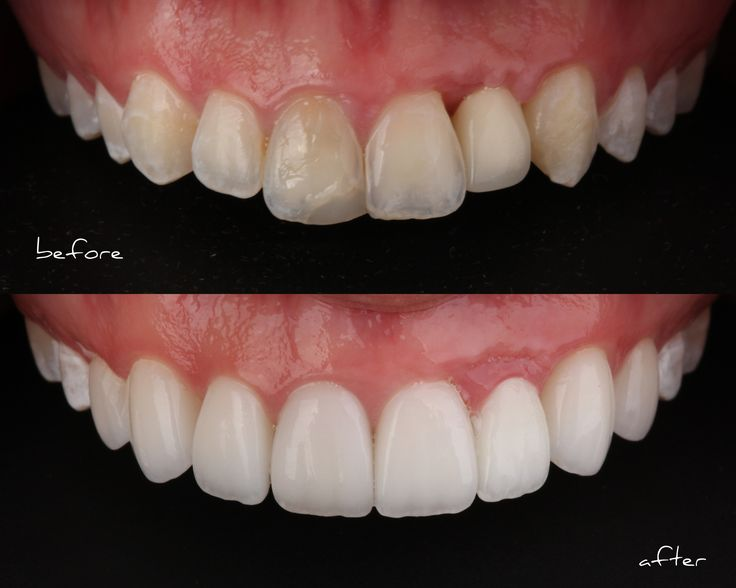 Smile Stylist Before and After Porcelain Veneers