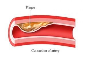 What Is Cholesterol -See how to lower cholesterol naturally at: http://vitamins.vitanetonline.com/