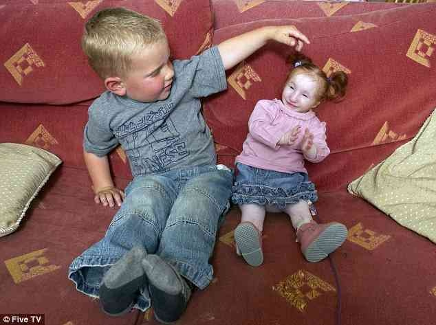 Primordial Dwarfism Baby 35 best images about P...