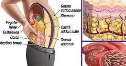 Come SVUOTARE l'Intestino Da Depositi Di Grasso e Parassiti Con 2 Ingredienti Naturali