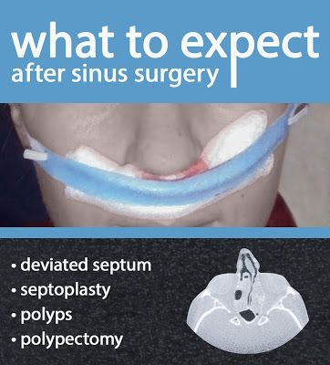 What to Expect After a Sinus Surgery #deviatedseptum #septoplasty #polyps #polypectomy #sinuses