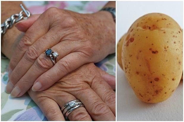 Położyła na dłonie ugotowane ziemniaki