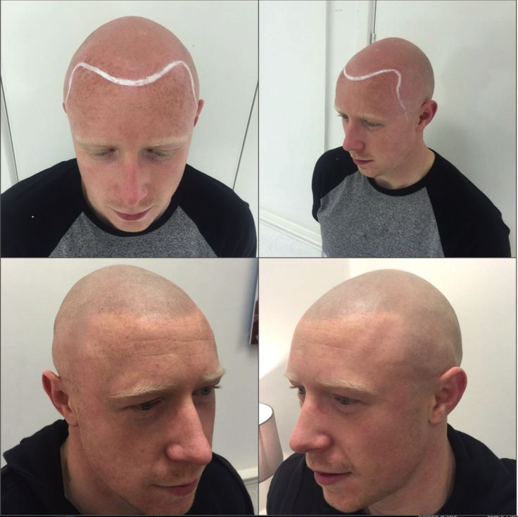 18 best images about before and after scalp micro for Head tattoo hairline