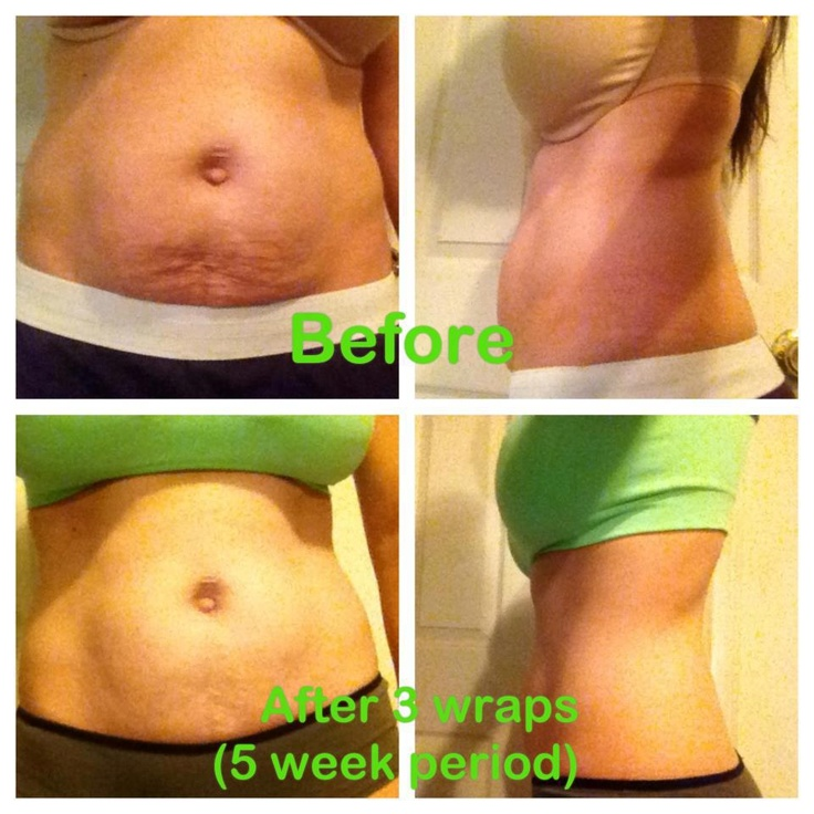 3 WRAPS! 3 It Works wraps and she is ready for summer! Are you?? Loyal Customer gets 4 wraps for $59... retail for $99. www.amandafuzzell.myitworks.com