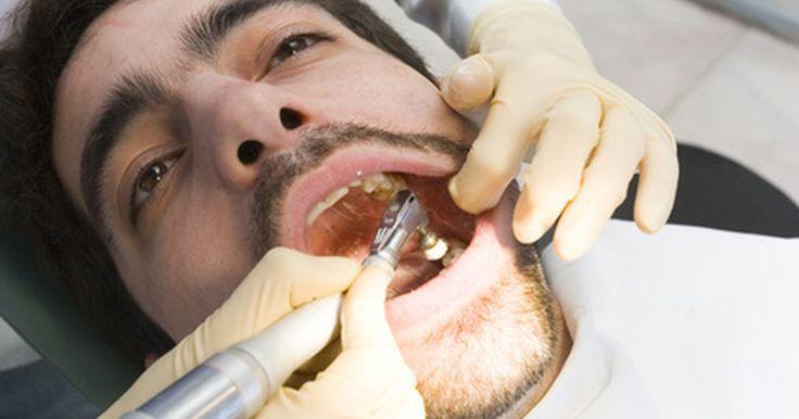 """Como colar um dente. É possível colar um dente ou um tratamento dentário novamente como uma solução temporária até que você tenha o mesmo consertado por um profissional. Embora um tratamento odontológico, como uma coroa, possa ajudar a proteger e reparar o seu dente, bem como melhorar o seu sorriso, os acidentes acontecem e podem deixá-lo """"fora de combate"""". Quando ..."""