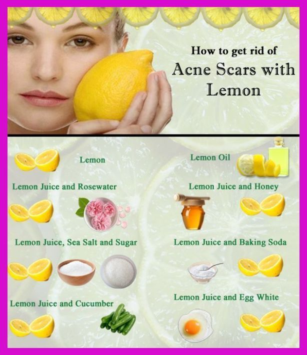 How To Get Rid Of Blackheads With Honey And Lemon