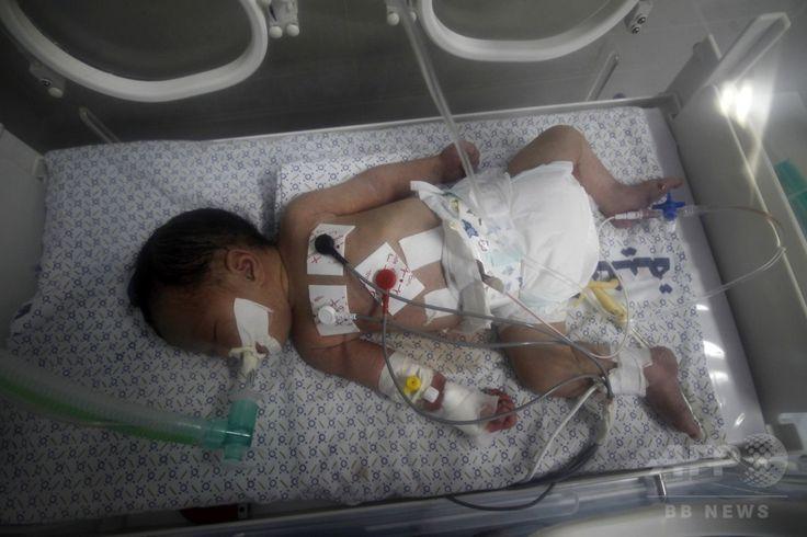 パレスチナ自治区ガザ地区(Gaza Strip)ハンユニス(Khan Yunis)のナセル病院(Nasser Hospital)で、イスラエルの攻撃で死亡した母親から帝王切開で取り出され、保育器で育てられる生後2日のシャイマ・シーク・イード(Shayma Sheikh al-Eid)ちゃん(2014年7月27日撮影)。(c)AFP/SAID KHATIB ▼29Jul2014AFP|ガザ攻撃で死亡の妊婦から赤ちゃんを摘出 http://www.afpbb.com/articles/-/3021741 #Khan_Yunis #Nasser_Hospital