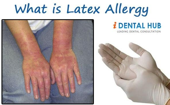 157 Best Latex Allergy Images On Pinterest Latex Allergy
