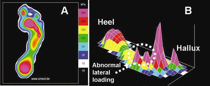Effects of Foot Orthotics on Plantar Pressures -----------------------------------------------  => Numerous studies have shown that FOs can significantly reduce vertical force and pressures on various areas of the plantar surface of the foot. ---------------------------------------------------  => Peak pressures can be reduced, at the most, by about 20% with an FO. In terms of injury.... ----------------------------------------------  Read More :- on.fb.me/1DxMUAH
