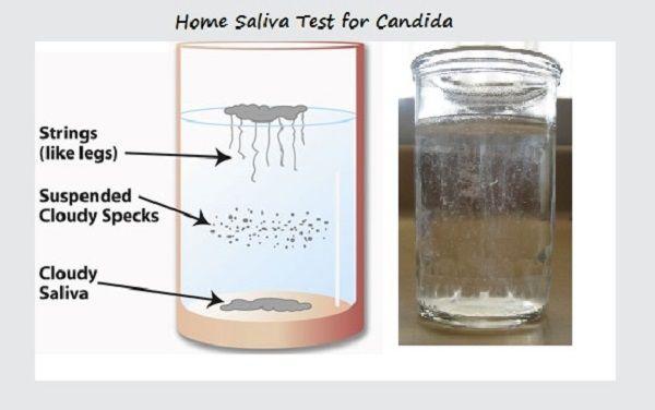 Saliva-Home-Test