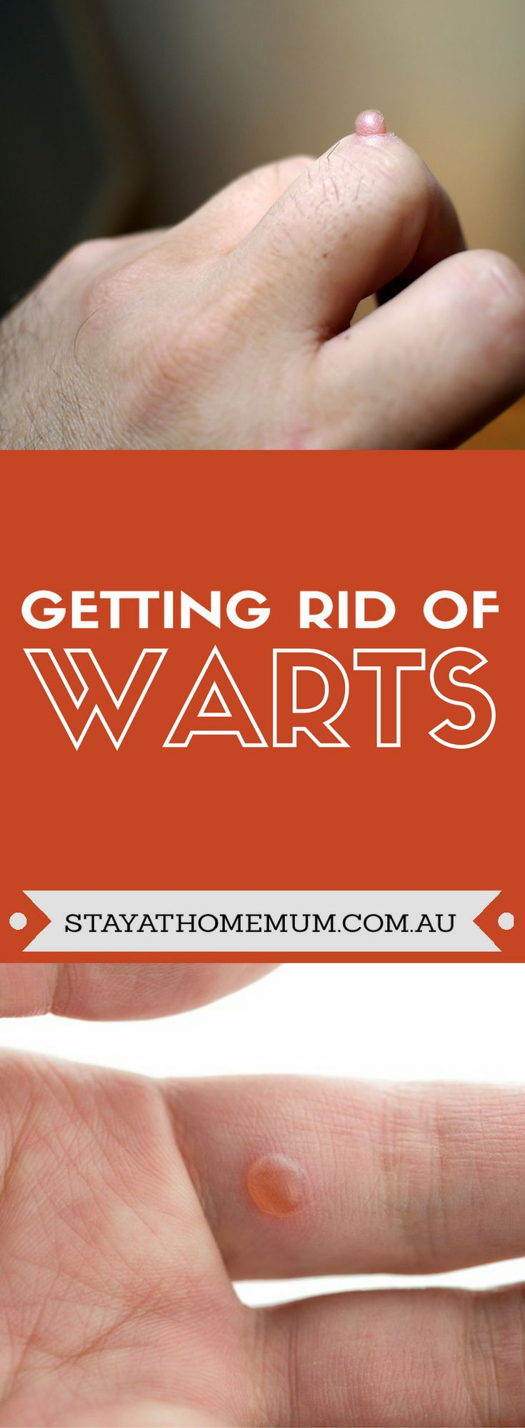 There are plenty of prescription medications you can use to combat warts as well as a medical procedure using nitric oxide to freeze the wart away. However, there are also plenty of home remedies in getting rid of warts.