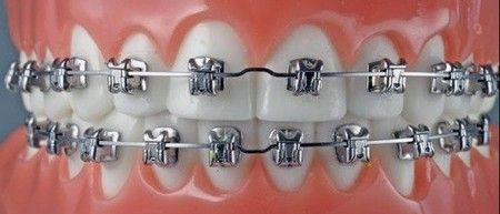 Brackets Los brackets de porcelana o cerámica, representan la solución más sencilla para los pacientes que esperan optar por un tratamiento de ortodoncia y gozar también de una buena estética dental durante su implementación. Conoce los principales aspectos sobre este tipo de aparatos fijos, para que puedas elegir correctamente la mejor opción para tus dientes. http://ortodonciabaires.com.ar/