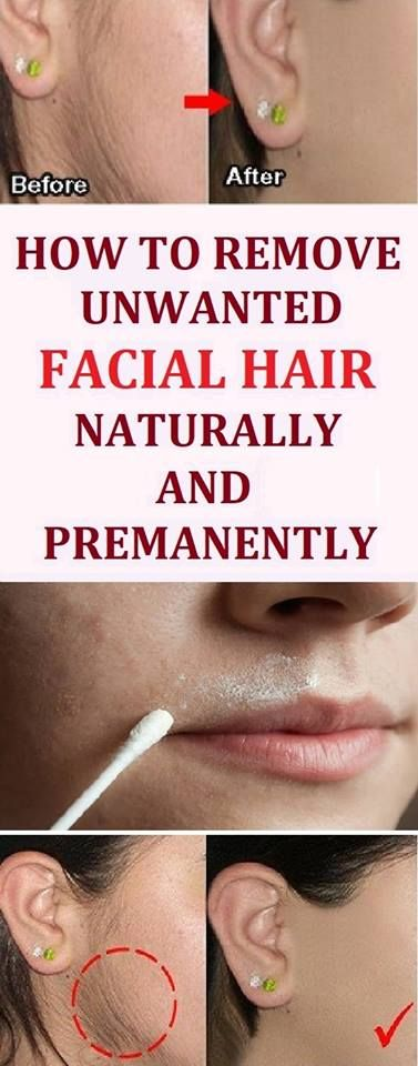 Ways to remove facial hair for women-1043