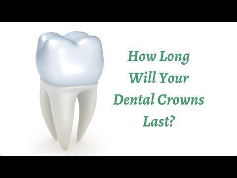 How Long Will Your Dental Crowns Last?  preventdentalsuite.com.au