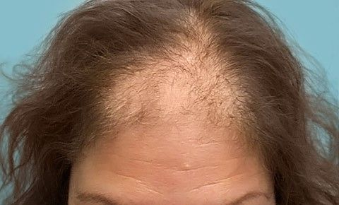 Discover the facts behind female hair loss as well as how the condition is treated.