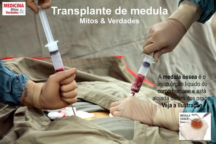 Medicina, Mitos & Verdades | COMO É FEITO O TRANSPLANTE DE MEDULA ÓSSEA