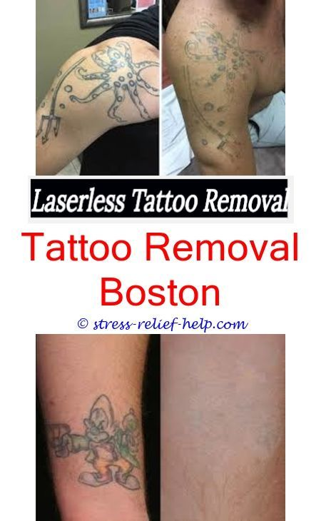 Can i get laser tattoo removal while pregnant.Tattoo removal after 3 ...