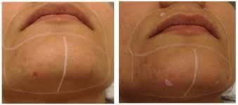 Female chin hair is a big problem for many. But we need different hair removal methods depending on the thickness of our hair, skin type and budget. Shaving and plucking simply cuts hair at skin's level and creates blunt ends, making it appear thicker.