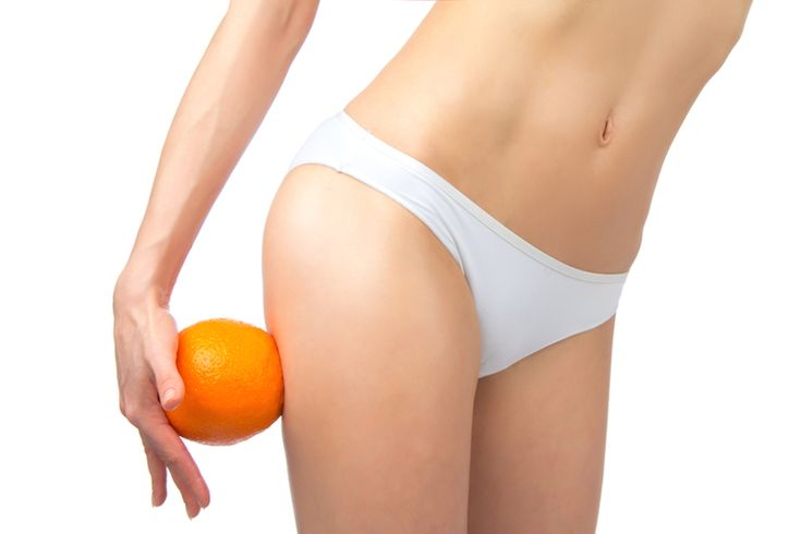 Your Cellulite May Be Caused By These Food Ingredients