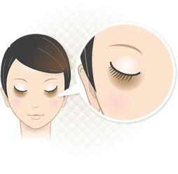 症状からみる|腫れない目の下のクマ・たるみ治療 | 銀座セオリークリニック