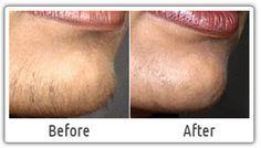 Laser Hair Removal Clinic in Delhi,Best Laser Hair Removal in Delhi,Full Body laser hair removal in delhi,Bikini Laser Hair Removal in delhi,Laser hair removal in delhi, Pricing