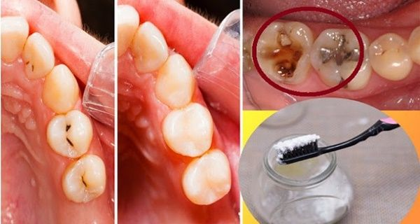 Tooth decay is mainly made from foods that contain a lot of carbohydrates that are left in the mouth after consuming them.These leftovers will later become bacteria that will destroy the teeth. After they become bacteria the teeth will soon start making cavities that later becomes into tooth decay. The bacteria turns into acid which…