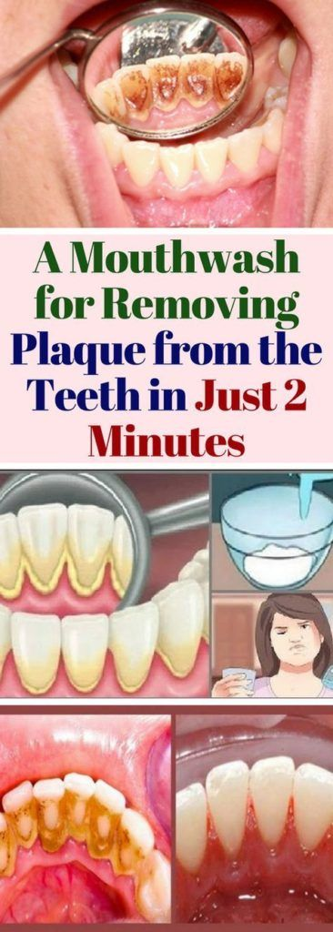 A mouthwash for removing plaque from the teeth.