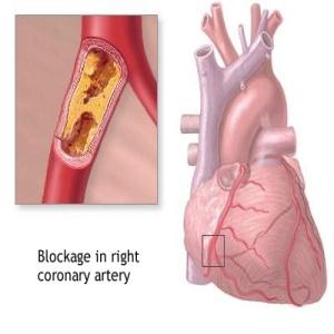 Four Common Symptoms Of Blocked Arteries