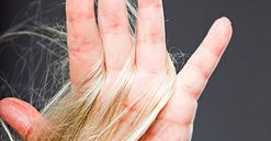Hair loss during menopause: Hair loss can be frustrating for menopausal women.Fortunately, there are alternative solutions to prevent and stop it.