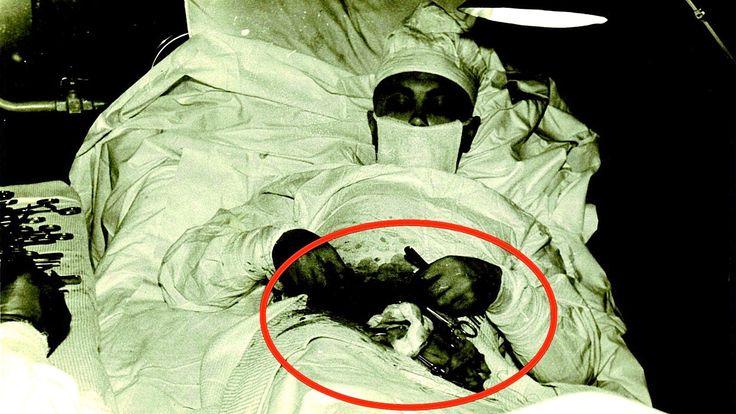 15 Creepy Vintage Medical Photos