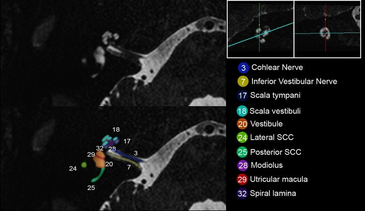 ECR 2014 / C-2316 / The inner ear imaging anatomy with 3T MRI new sequences: A comprehensive update - EPOS™