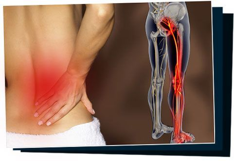 http://shw1.com/wp-content/uploads/2015/09/SciaticaSOS.jpg Sciatica Natural Home Treatment: Get Rid Of Sciatica Pain In 7 Days Or Less!