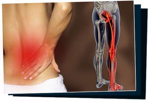 http://shw1.com/wp-content/uploads/2015/09/SciaticaSOS.jpg Sciatica Natural Home Treatment: Get Rid Of Sciatica Pain In 7 Days Or Less!