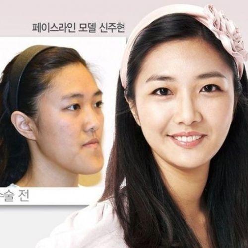 Fotos do antes e depois na cirurgia plástica coreana (30 fotos)