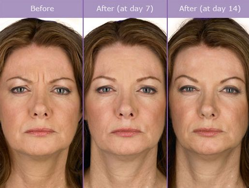 11 best botox images on pinterest botox cosmetic botox fillers 3 diy yoga facial exercises that operate rapidly for smoothing lines to look younger to firm up flabby skin solutioingenieria Choice Image