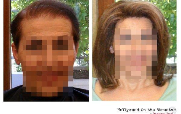 Τα αποτελέσματα της τεχνικής HOS-2. Αποκλειστικά από τη κλινική μαλλιών Bergmann Kord. http://www.hos2.gr/photo-gallery-hollywood-on-the-streets/