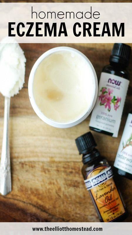 Homemade Eczema Cream - The Elliott Homestead #health #DIY