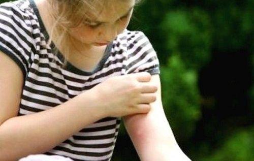 Ecco come tenere lontano le zanzare: vi diamo la ricetta per un repellente naturale ed autoprodotto!
