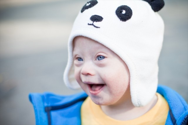 25,000 Reasons Not To Worry About The Results Of A Down Syndrome Screening Test