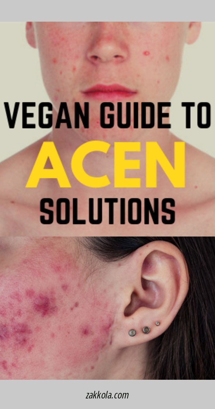 Click the link to learn more acne. Simply click h…